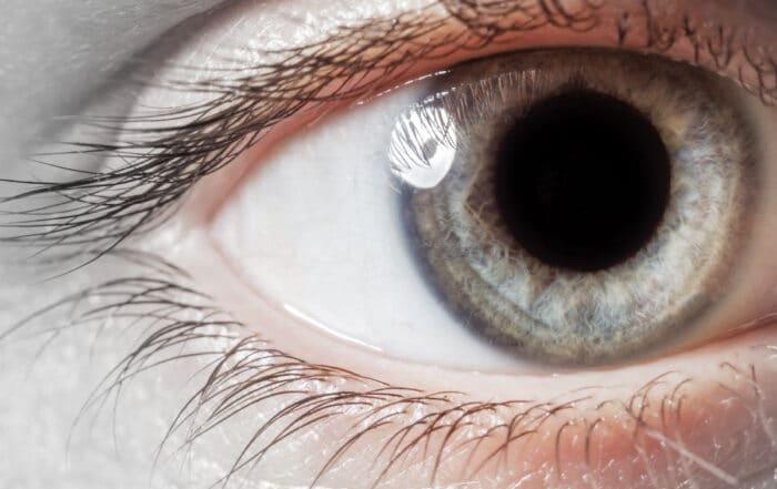 Seance iridologie à Nice